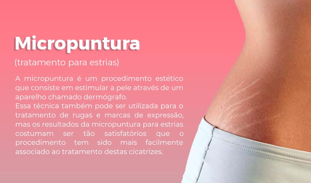 Micropuntura.png