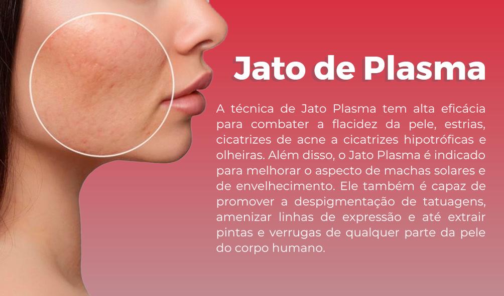 Jato-de-Plasma.png