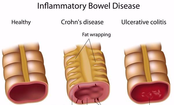 crohn-disease-ulcerative-colitis_edited_edited