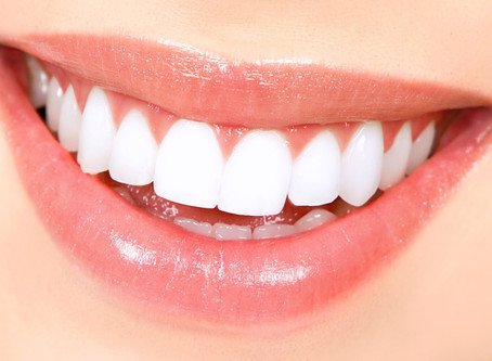 Are Veneers For You?
