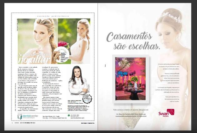Invisalign para Noivas | Dra Giselle Gianichini Porto Alegre