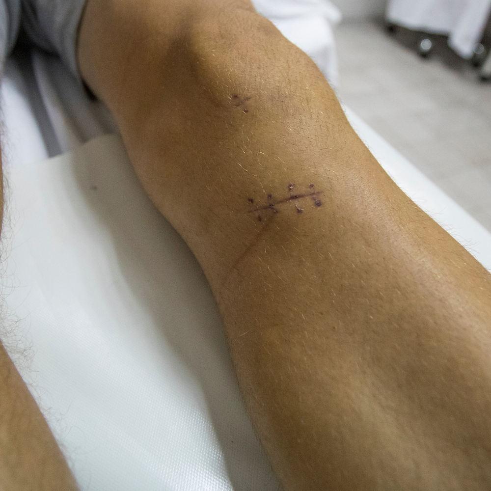 ACL Surgery, ACL Rehab Specialists, Exercise rehab, Sports Physio, Physio Enoggera