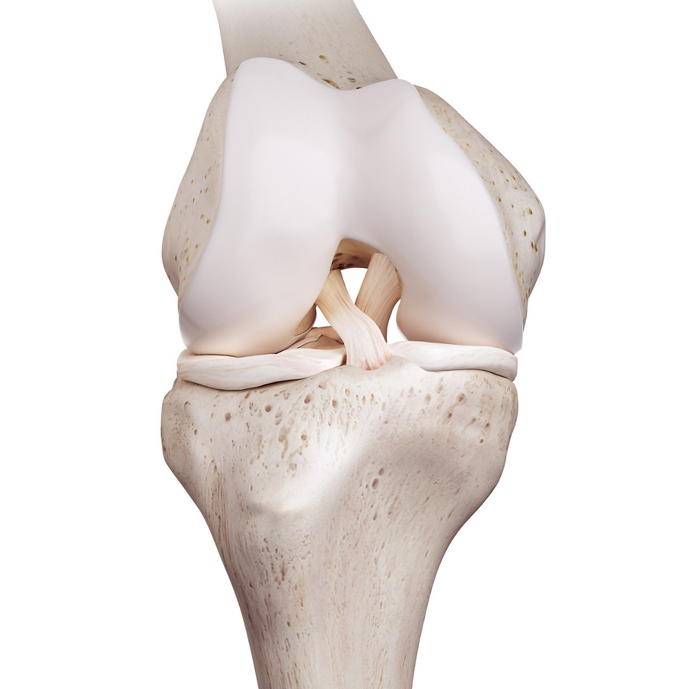 ACL Rehab, ACL Physio, Sports Physio, Return to Sport