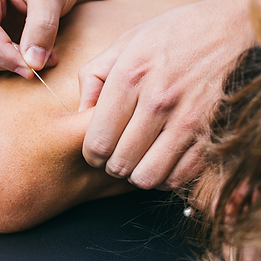 dry needling brisbane, acupuncture brisbane, acupuncture enoggera, physio enoggera, physio near me