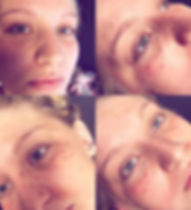 Soft freckling #stltattoos #freckletatto