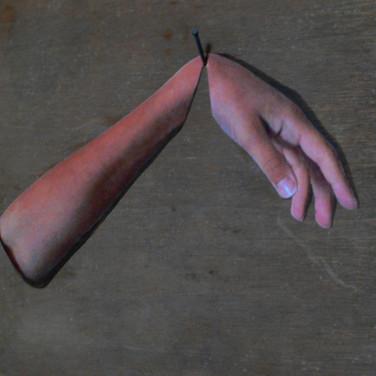 Wrist 2011