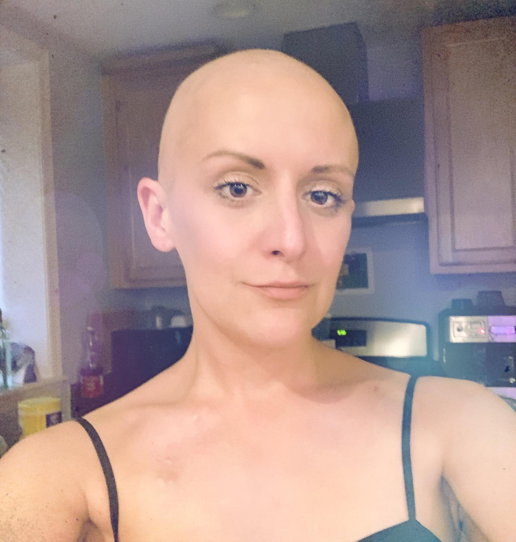 Bald Violet