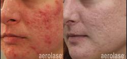 Aerolase Acne Treatment