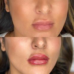 Dina Lips