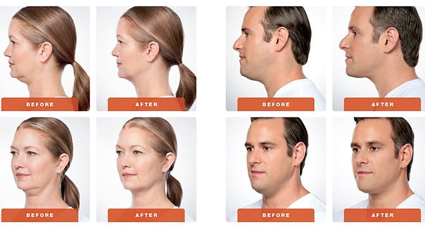 Kybella for the doube chin