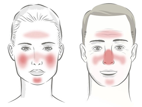 Managing Rosacea IS Possible!
