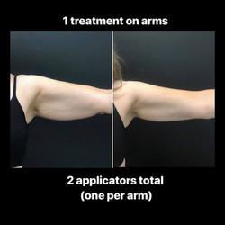 CoolSculpting Arms