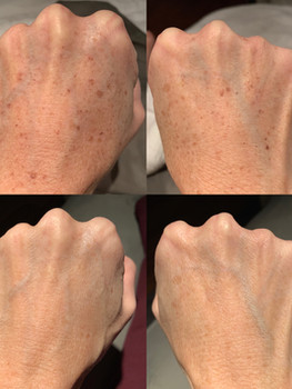 IPL Photofacial for the hands