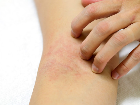 Eczema atópico / Dermatite atópica