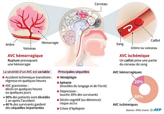 L-accident-vasculaire-cerebral-AVC_0_730