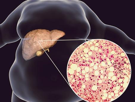 Gordura no fígado deve ser tratada.