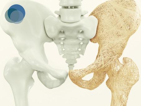 Osteoporose afeta cerca de 70% das mulheres após a menopausa