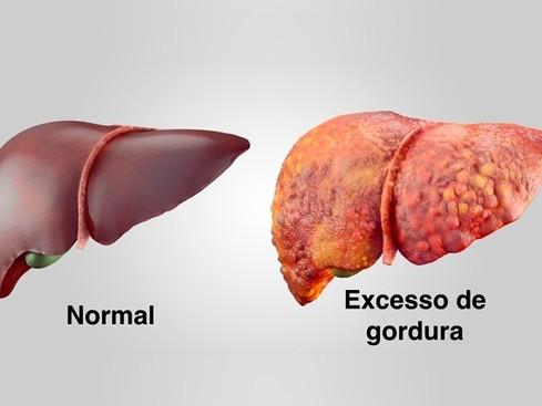 Esteatose hepática ou fígado gorduroso: um vilão silencioso