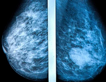 Gemcitabine Plus Cisplatin Repeating Doublet Therapy in Previously Treated, Relapsed Breast Cancer Patients (2000)
