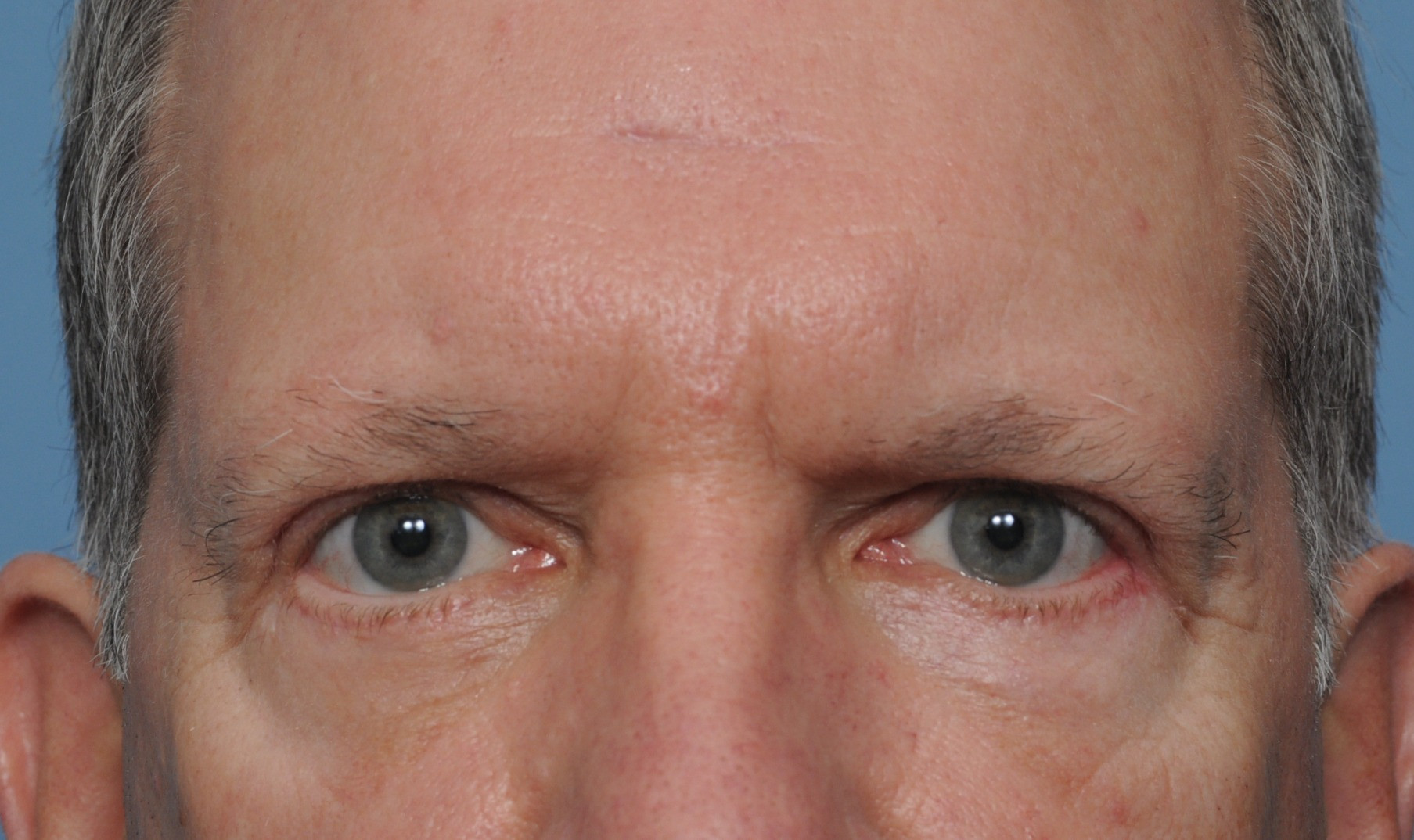 after brow bleph front.jpg