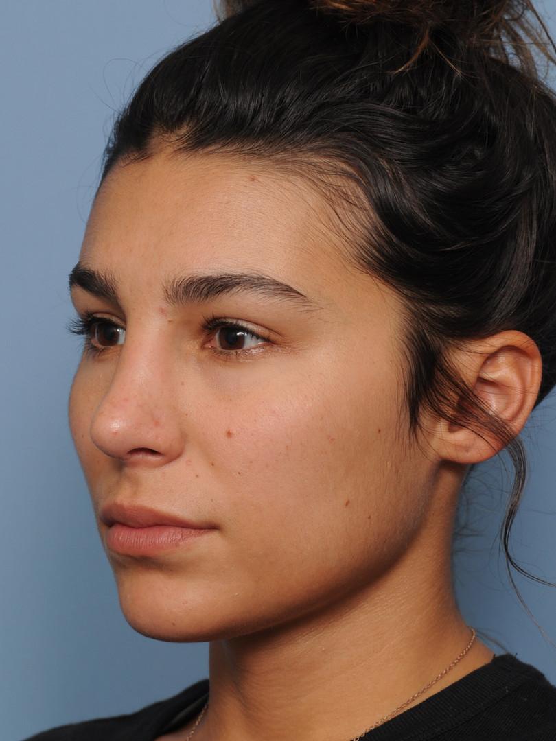 before rhinoplasty oblique.JPG