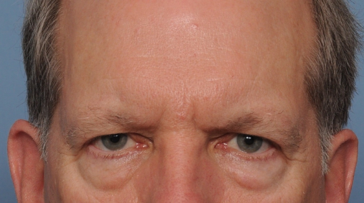 before brow bleph front.jpg