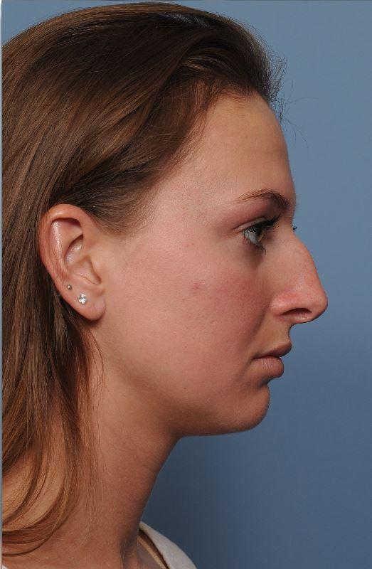 before rhinoplasty right.JPG