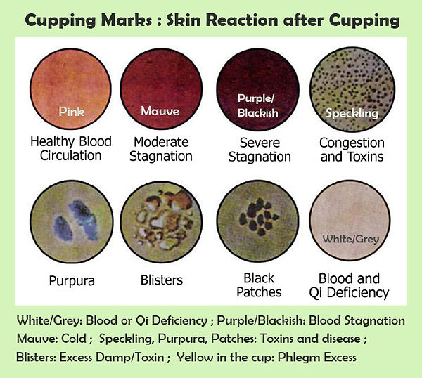 Cupping Therapy Scar Tissue: Houma Massage Co