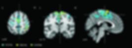 Regions-of-decreased-brain-activity-as-a