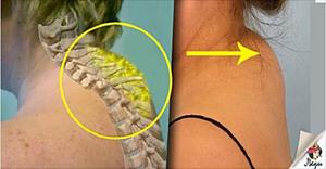 Лечение остеохондроза отзыва