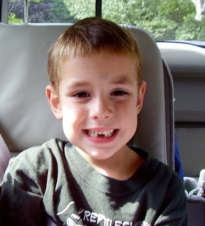 matthew without teeth (1)