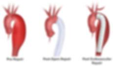 Διάγνωση. Η αξονική αγγειογραφία αποτελεί την καλύτερη απεικονιστική μέθοδο των ανευρυσμάτων της θωρακοκοιλιακής αορτής. Επίσης το ανεύρυσμα της κοιλιακής αορτής απεικονίζεται με το υπερηχογράφημα κοιλίας, ενώ το ανεύρυσμα της θωρακικής αορτής με την ακτινογραφία, το υπερηχογράφημα, την αξονική και τη μαγνητική τομογραφία.   Αντιμετώπιση. Συντηρητικά μπορεί να αντιμετωπισθούν συνήθως τα ανευρύσματα με μέγεθος κάτω των 5 εκατοστών που αναπτύσσονται αργά και χωρίς ενοχλήσεις. Τότε στον ασθενή χορηγείται αντιυπερτασική αγωγή και συστήνεται εξάμηνη παρακολούθηση.   Στα ανευρύσματα που είναι μεγαλύτερα των 5 εκατοστών, στα γρήγορα αναπτυσσόμενα ανευρύσματα και στα ανευρύσματα που προκαλούν συμπτώματα ή εμφανίζουν διαρροή αίματος, η αντιμετώπιση είναι χειρουργική.