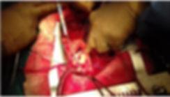Δημήτριος Χρ. Ηλιόπουλος MD, PhD Καρδιοχειρουργός | Αντικατάσταση Αορτικής ρίζας με διατήρηση της Αορτικής βαλβίδας (Επέμβαση David)