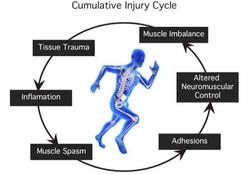 cumulative_injury-cycle-landscape