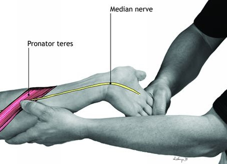 Wrist Pain Therapist in NYC - Therapy and Recovery.