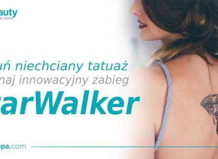 Odzyskaj młody wygląd skóry dzięki laserowi StarWalker! Usuń niechciany tatuaż, zmiany naczyniowe...