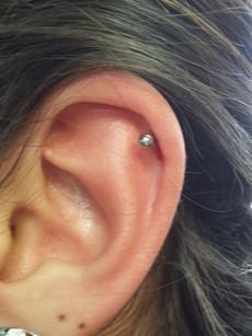 Helix (Cartilage)