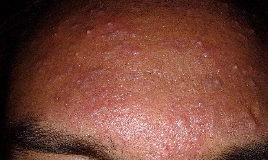 Fungal Acne Everything You Need To Know About Malassezia Folliculitis Accufix Cosmetics