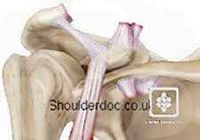 shoulderdoc_rockwood_6.jpg