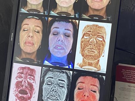 Skin scanning offer!!!