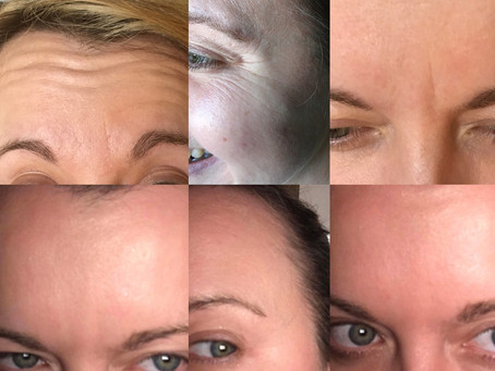 8,27th, 28th October training - anti ageing