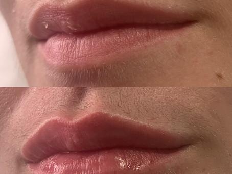 Lip filler offer- this week only!!