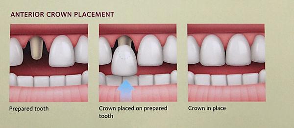 Crowns in Pratt