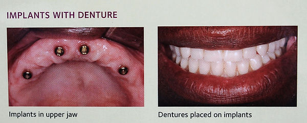 Implants, Dentures