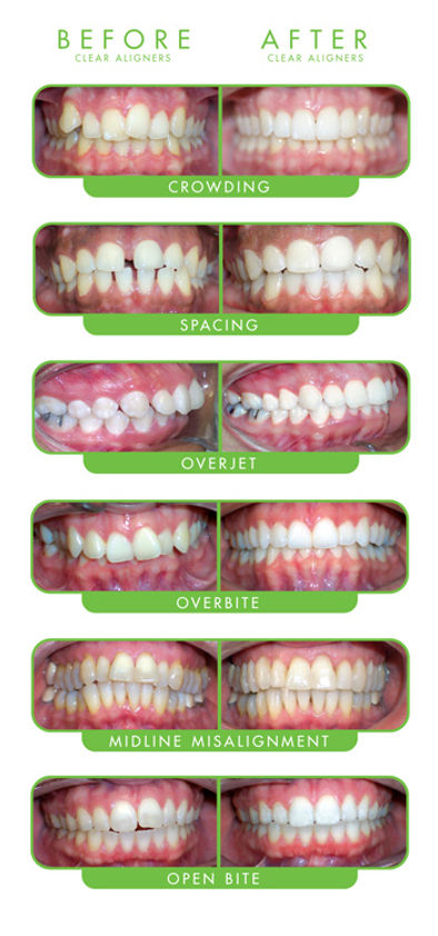 ClearCorrect Before/ After