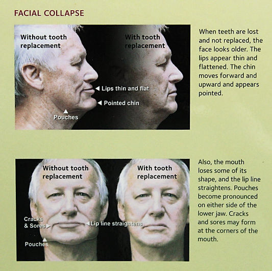 Facial Collaspe