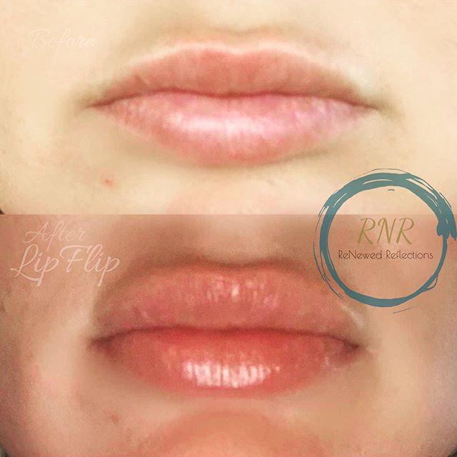 Lip-Flip