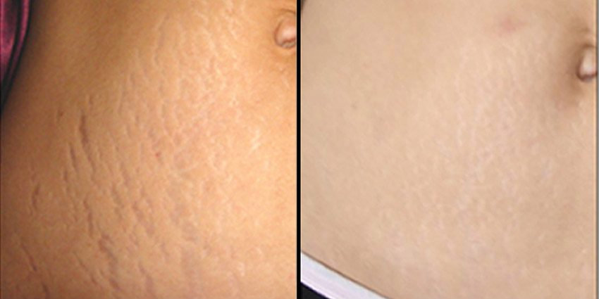 Stretch Mark Fading/Removal