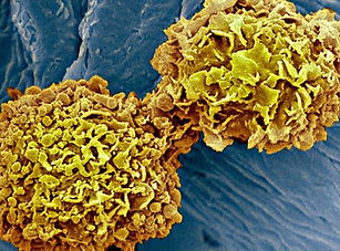 _98681534_m1220387-breast_cancer_cells_s