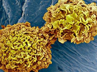 """Examen de sangre para el cáncer """"Enormemente Emocionante"""""""
